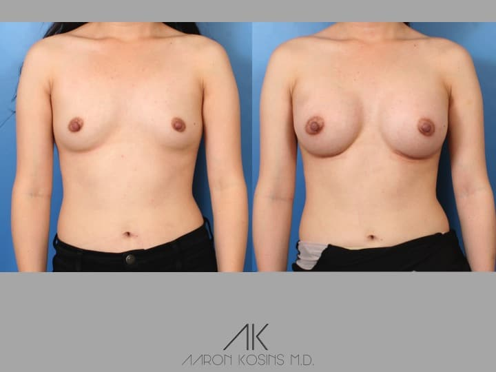 Slide46 - Newport Beach Breast Augmentation
