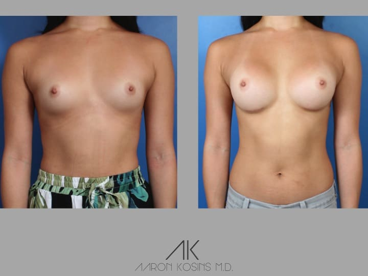 Slide53 - Newport Beach Breast Augmentation