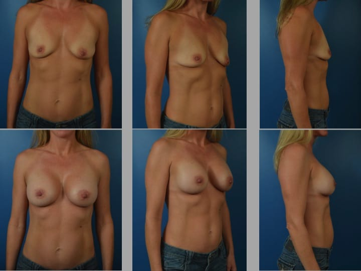Slide64 - Newport Beach Breast Augmentation