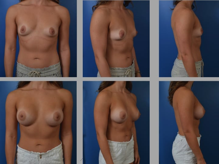 Slide69 - Newport Beach Breast Augmentation