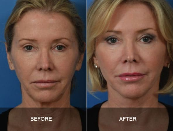 facial 1 - Facial Aging and Rejuvenation