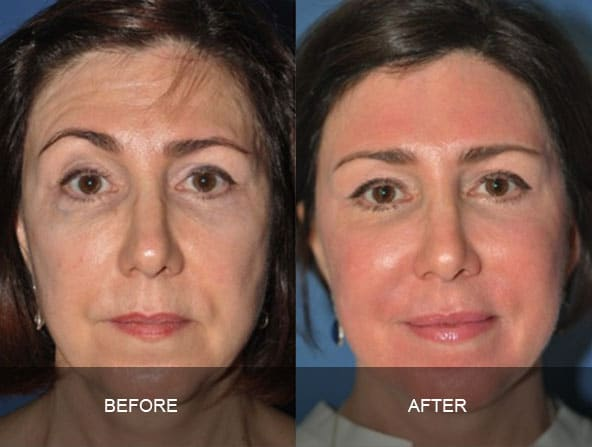 facial 2 - Facial Aging and Rejuvenation