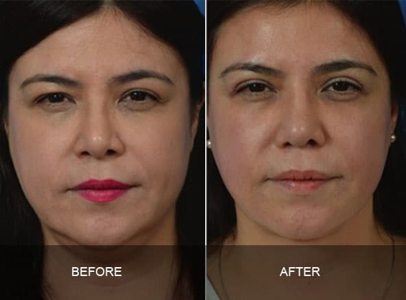 facial 4 - Facial Aging and Rejuvenation