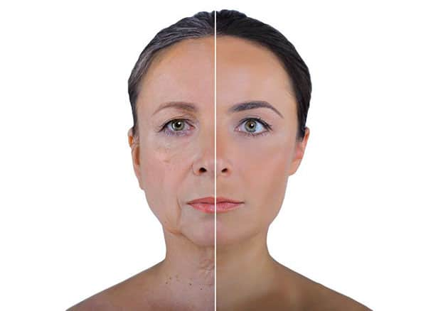 facial 7 - Facial Aging and Rejuvenation