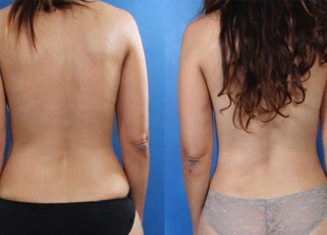 lipo 2 e1488931074757 - Fat Transfer and Liposculpture