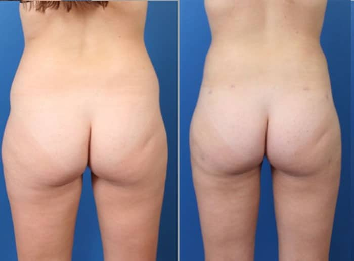 lipo 4 - Fat Transfer and Liposculpture