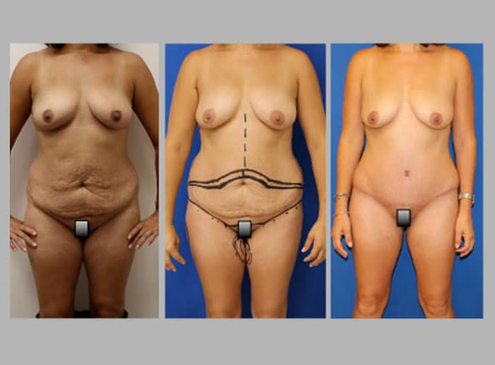 lipo 5 - Fat Transfer and Liposculpture