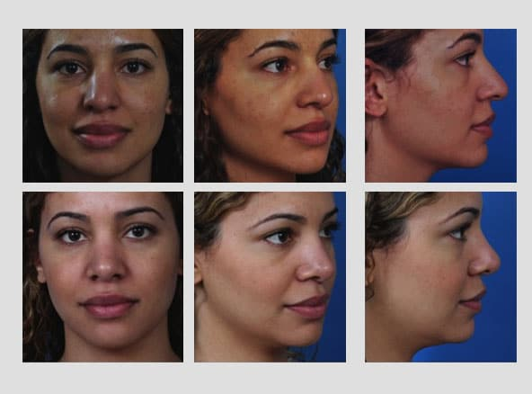 Rhinoplasty 5 - Newport Beach Rhinoplasty – Secondary / Revision Rhinoplasty & Ethnic Rhinoplasty