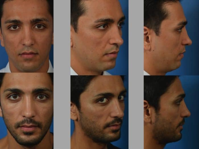 Slide 2 2 - Newport Beach Rhinoplasty – Secondary / Revision Rhinoplasty & Ethnic Rhinoplasty