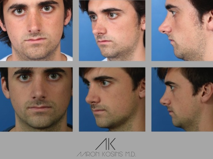 Slide 2 27 - Newport Beach Rhinoplasty – Secondary / Revision Rhinoplasty & Ethnic Rhinoplasty