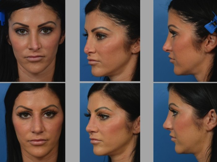 Slide 2 29 - Newport Beach Rhinoplasty – Secondary / Revision Rhinoplasty & Ethnic Rhinoplasty