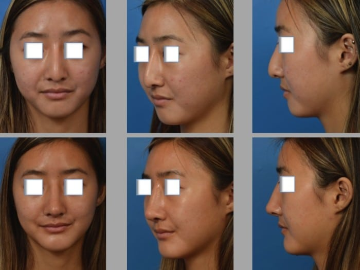 Slide 2 9 - Newport Beach Rhinoplasty – Secondary / Revision Rhinoplasty & Ethnic Rhinoplasty