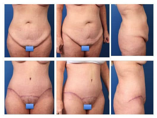 tummy 1 e1488930196572 - Body Contouring