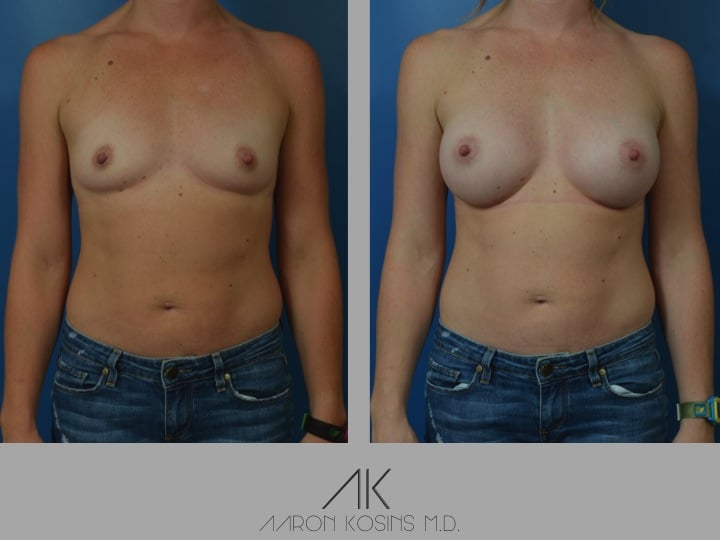 Slide12 - Newport Beach Breast Augmentation