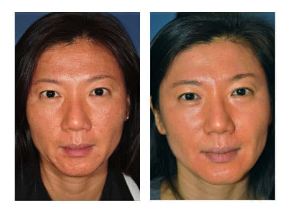 botox 1 - Botox and Fillers