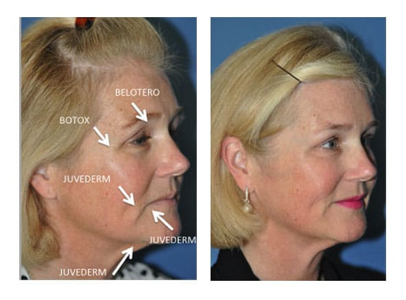 botox 2 - Botox and Fillers
